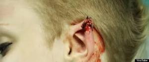 cut ear